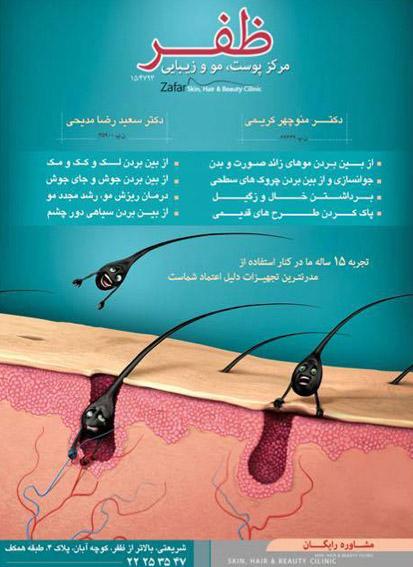 hair removal zafar